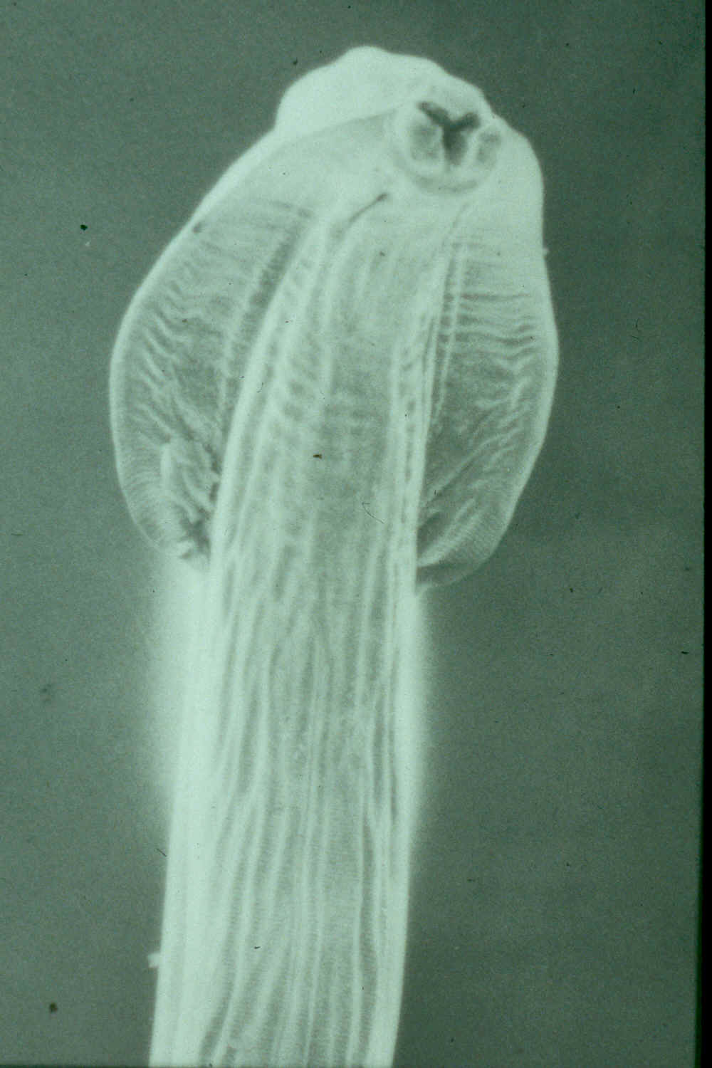 Parasitic Worms >> Toxascaris leonina head